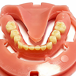Baltic Denture System Thomas Paul Zahntechnik