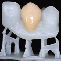 Stereolithografie ist eine 3D-Drucktechnik