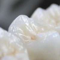 PEEK das Biomaterial